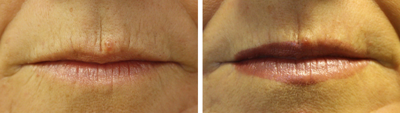 LipsLines Before an after Laser refracturing 5