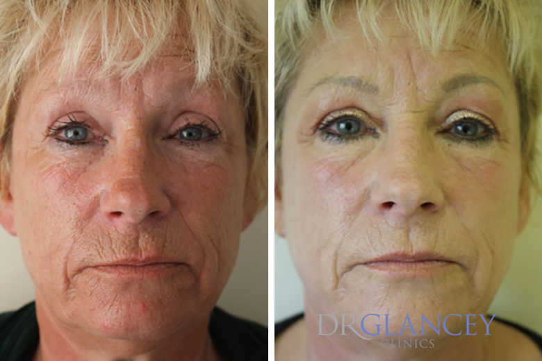 Pre and post Erbium Yag fractional laser resurfacing