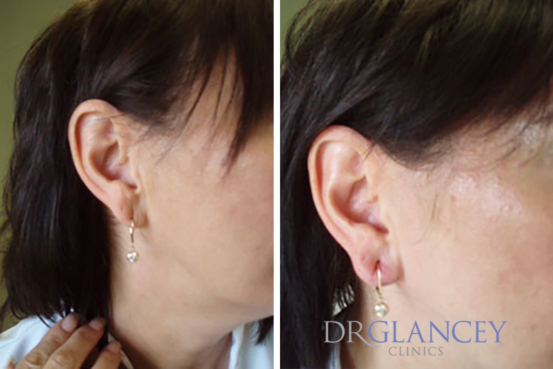 before and after ear lobe reconturing
