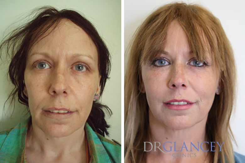 before and after facial reconturing