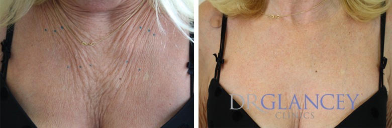 chest before and after botox section