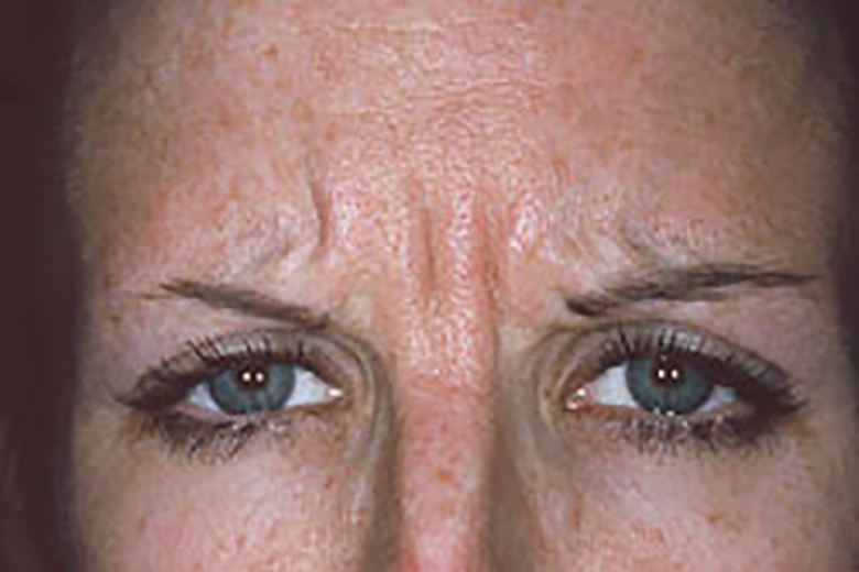 frown lines before botox section