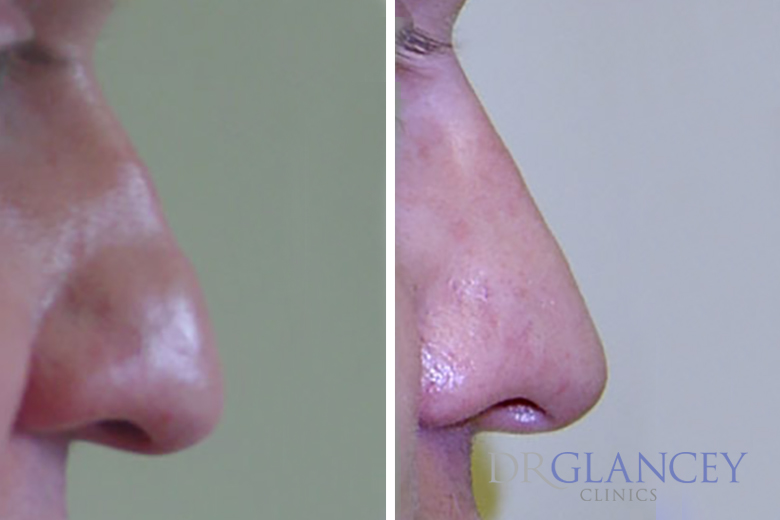 nose before and after reconturing section